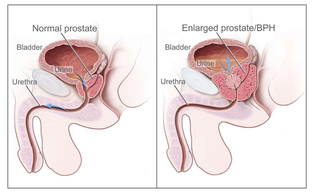 À gauche, schéma d'une prostate « normale ». À droite, hyperplasie bénigne de la prostate (HBP). © National Cancer Institute, Wikimedia Commons, CC by-sa 3.0