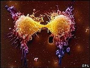 Généralement, les cellules cancéreuses continuent à se diviser car le processus de suicide cellulaire ne s'opère pas Grâce à la PAC-1, cela pourrait bientôt changer... (Crédits : SPL)