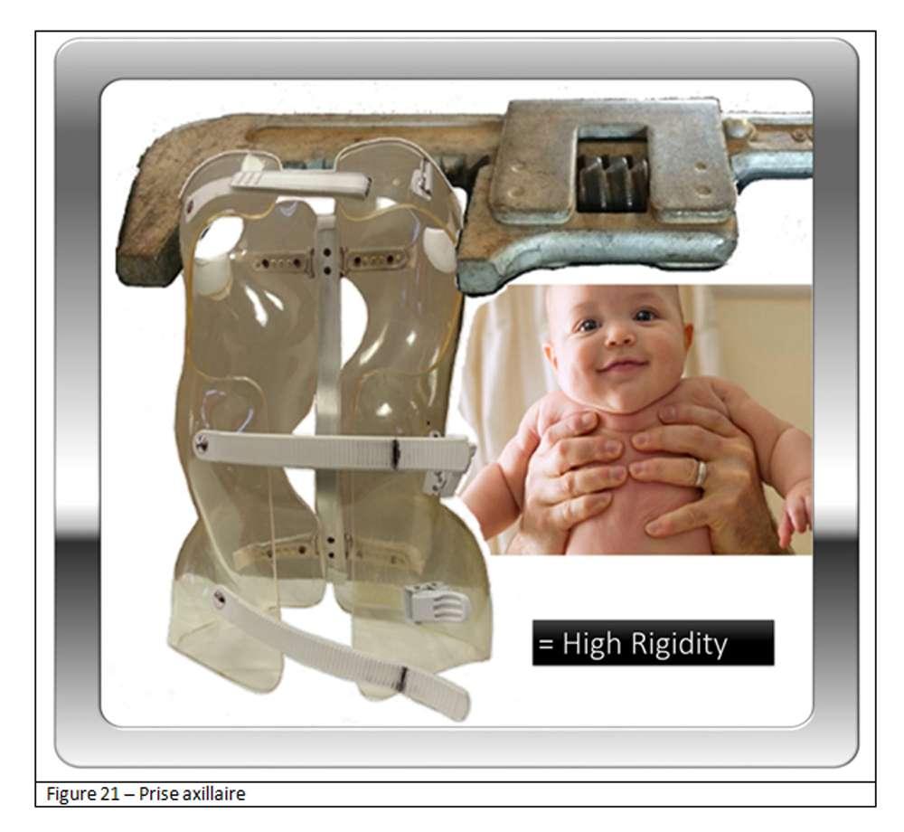 Pour un corset, comme lorsque l'on prend un bébé, la prise est latérale au niveau axillaire. © Docteur Jean-Claude de Mauroy. Tous droits réservés/Reproduction interdite