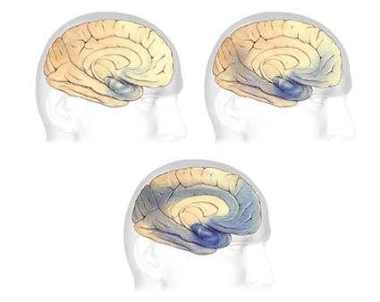 Progression de la maladie au cours du temps. Le dernier schéma illustre l'état du cerveau à un stade très avancé de la maladie. Source: © 2007 Alzheimer's Association. www.alz.org. All rights reserved. Illustrations by Stacy Janis.