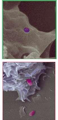 Invasion de macrophage (THP-1) par B. suis vue au microscope électronique à balayage. © Inserm