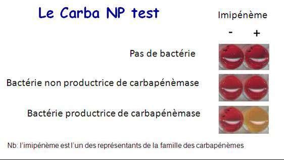 Voici le principe de fonctionnement d'un des deux tests : le Carba NP test. Les bactéries résistantes, celles qui synthétisent l'enzyme capable de rester insensible au carbapénème, prennent une couleur orangée à cause de l'acidification du milieu que cela provoque quand, sans résistance la boîte de Pétri reste rouge. © Patrice Nordmann, Inserm