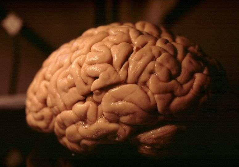 La maladie d'Alzheimer se caractérise par la destruction des neurones de certaines régions du cerveau, entraînant la forme la plus fréquente de démence. © Heidi Cartwright, Wellcome Images, Flickr, cc by nc nd 2.0