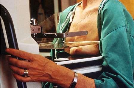 Mammographie pour le dépistage du cancer du sein. Source : Wikimedia Commons, http://commons.wikimedia.org/wiki/File:Diagnosis_-_Mammography.jpg. Image provenant du gouvernement américain. Domaine public.
