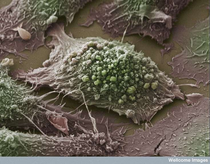 Le cancer du poumon, dont on peut voir une cellule tumorale, est de loin le plus mortel des cancers. En France métropolitaine, en 2012, il a emporté près de 30.000 personnes. S'il est aussi causé par le tabagisme ou l'exposition au radon, la pollution atmosphérique compte aussi parmi les coupables. © Anne Weston, Wellcome Images, Flickr, cc by nc nd 2.0