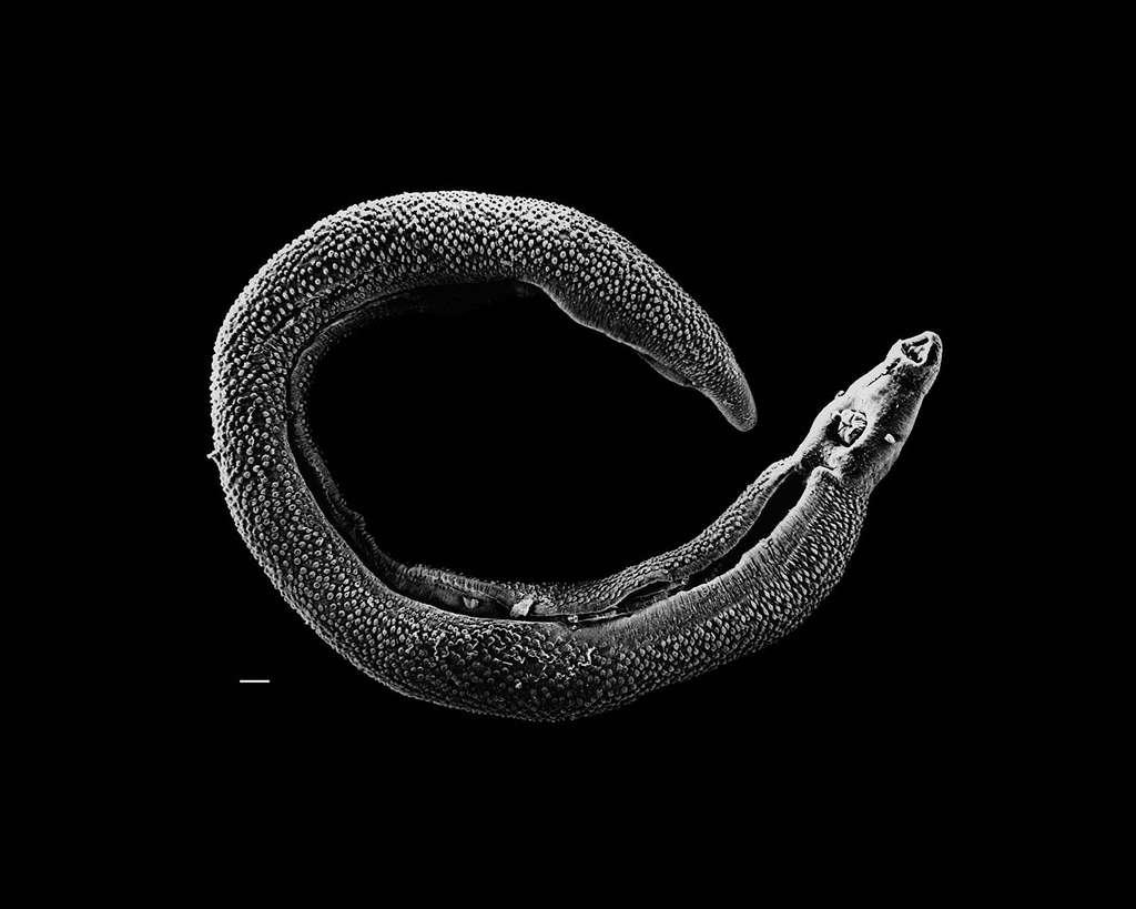 Les helminthes comprennent une grande diversité biologique de vers parasites, comme ce schistosome, à l'origine de la bilharziose, maladie entraînant près de 300.000 décès chaque année. © David Williams, Illinois State University, Wikimédia Commons, DP