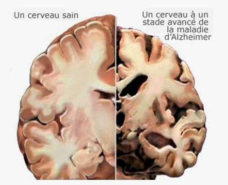 Disparition de cellules dans un cerveau malade d'Alzheimer (à droite). Source: © 2007 Alzheimer's Association. www.alz.org. All rights reserved. Illustrations by Stacy Janis.