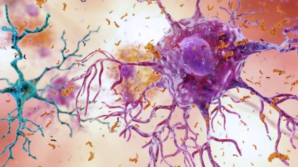 La maladie d'Alzheimer est due entre autres aux plaques amyloïdes qui entravent les connexions entre les neurones. © NIH