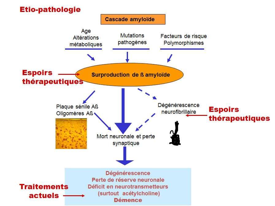 Les traitements de la maladie d'Alzheimer doivent intervenir avant les processus de mort neuronale. © DR