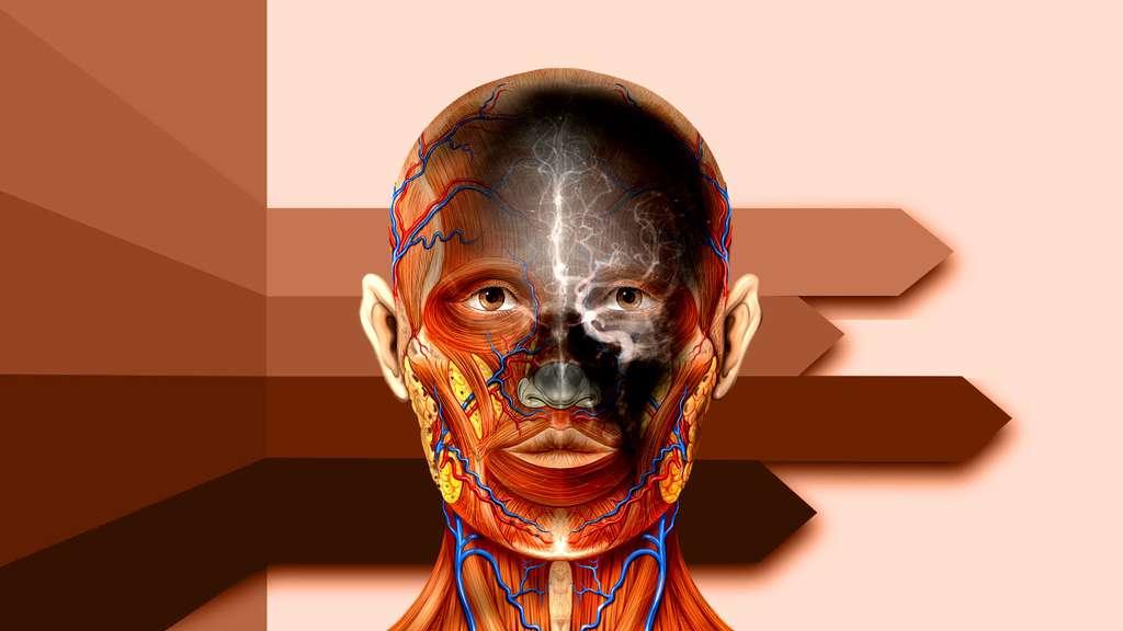 Vue de la tête avec une angiographie de l'artère carotide