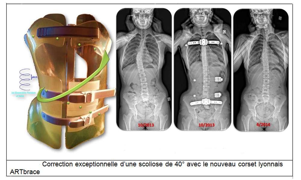Les causes de la scoliose sont souvent peu connues. Pour soigner cette déformation de la colonne vertébrale, il existe des traitements comme le corset par exemple. © Docteur Jean-Claude de Mauroy. Tous droits réservés/Reproduction interdite