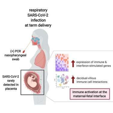 Les femmes enceintes positives au SARS-CoV-2 présentent une inflammation robuste au niveau du placenta avec l'activation des cellules immunitaires et des gènes stimulés par les interférons. © Alice Lu-Culligan et al. Med, Cell Press