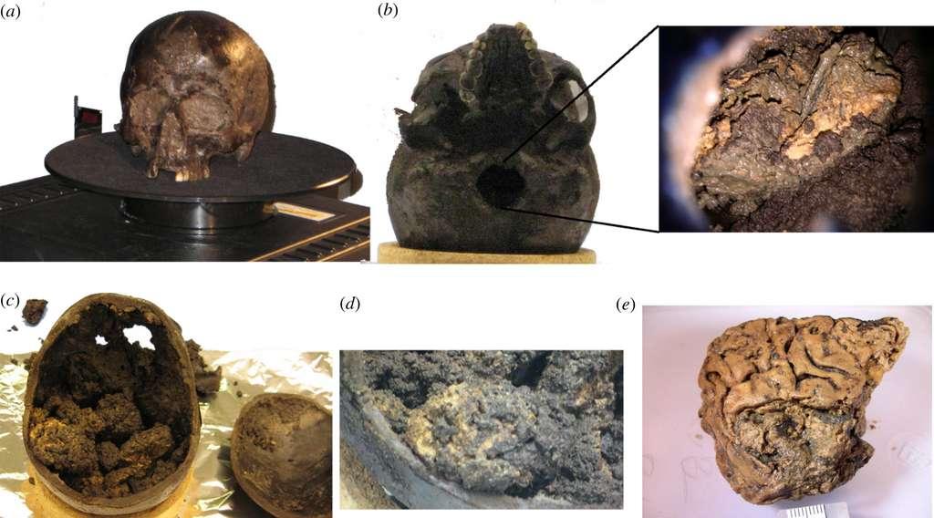 (a) Le crâne d'Heslington, dont les orifices sont remplis de boue. (b) La foramen, la base du cerveau, et son intérieur. (c) En ouvrant le crâne, les chercheurs ont trouvé des tissus intacts couverts de sédiments. (d) Des morceaux de cerveau couvert de sédiments. (e) Après avoir retiré les sédiments, on peut voir les gyrus d'un cerveau humain. © Alex Petzold et al. Journal of Royal Society Interface, 2020.