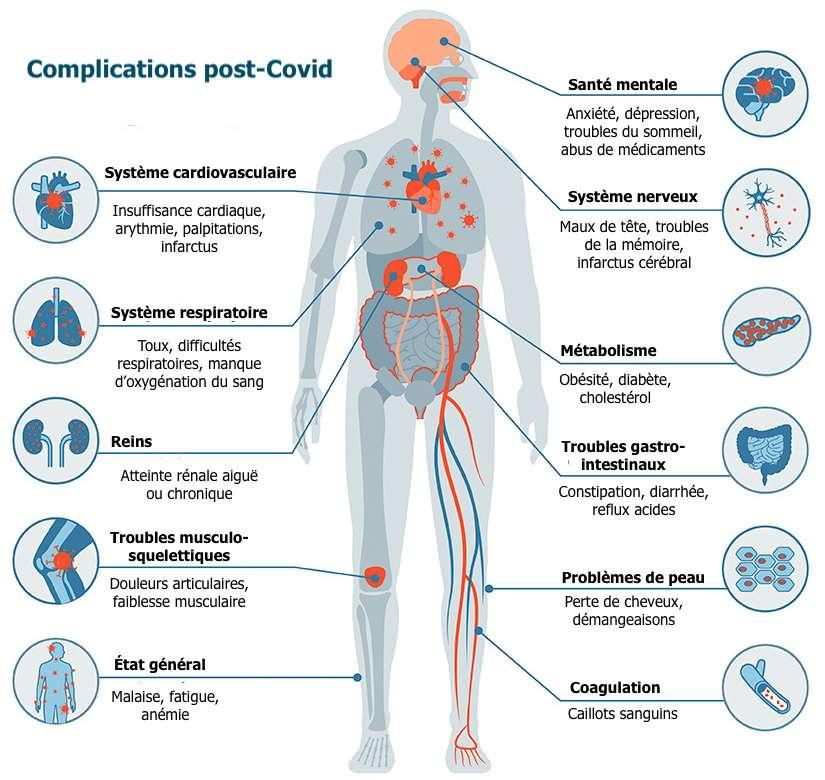 75 % des patients Covid souffrent encore de symptômes six mois après la maladie. © Sara Moser ; adaptation C.D pour Futura