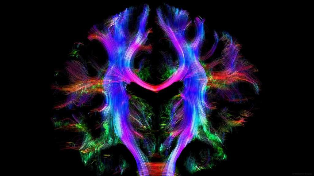 Des connexions dans le cerveau