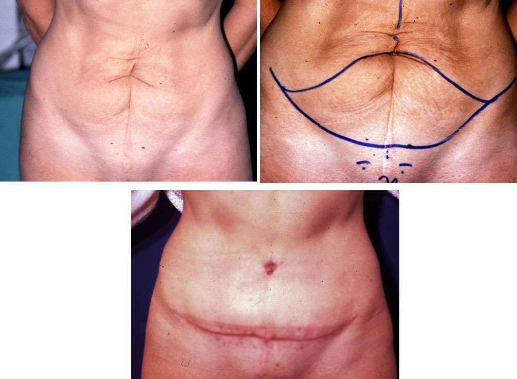 La plastie abdominale. © Dr Mitz, tous droits réservés