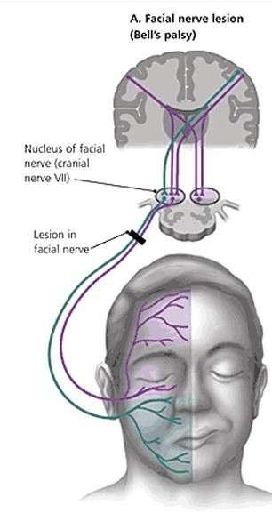 La paralysie de Bell est due à une lésion périphérique du nerf facial et provoque typiquement un affaissement de la bouche et de la paupière sur le côté du visage touché. © Wikipédia, CC by-sa 4.0