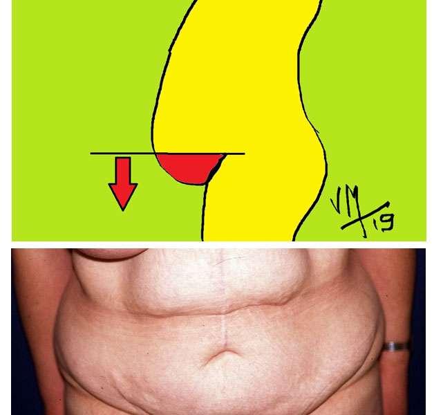 Un cas particulier : le ventre en besace ou tablier abdominal. © Dr Mitz, tous droits réservés