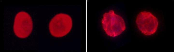 À gauche, des cellules saines ; à droite, des cellules atteintes par la progéria. Pour chacune d'entre elles, la lamine A a été marquée en rouge. La protéine n'est pas du tout organisée de la même façon. © Xavier Nissan, I-Stem
