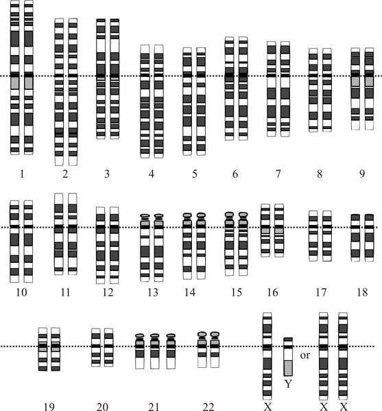 Schéma d'un caryotype d'une personne atteinte de trisomie 21. Le caryotype est l'arrangement des chromosomes par taille et par paires. © Human Genome Project, Wikimedia Commons, cc by sa 3.0