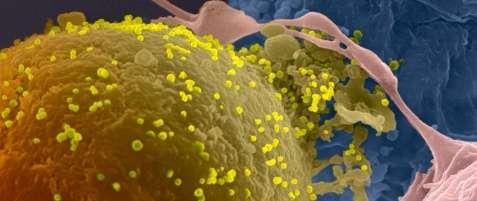 Lymphocytes infectés par le VIH-1. Les particules virales (en jaune) bourgeonnent à la surface d'une cellule infectée. Image réalisée en microscopique électronique à balayage. © Olivier Schwartz et l'Ultrapole de l'Institut Pasteur