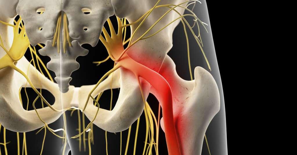 Le pincement du nerf sciatique. © Sébastian Kaulitzki - Shutterstock
