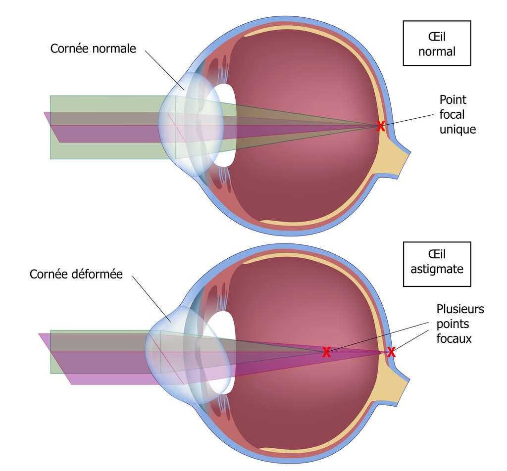 L'astigmatisme est dû à un défaut de courbure de la cornée ou du cristallin, qui fait que les rayons ne se focalisent plus sur un point unique de la rétine. © Alila Medical Media, Adobe Stock, traduction C.D. pour Futura