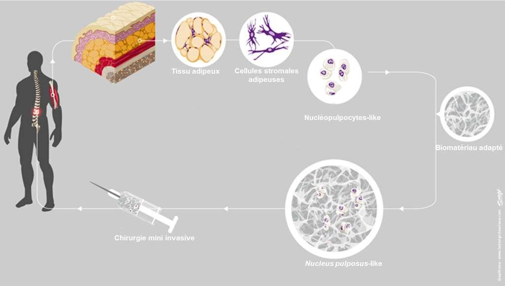 Les cellules sont cultivées avec des facteurs de croissance. Elles seraient ensuite associées avec un biomatériau de synthèse et réinjectées au patient. © Inserm, S. Renaudin/le Design de Solène pour l'Inserm