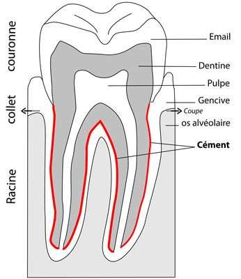 Fig. 10 - Coupe schématique d'une dent avec localisation du cément qui a permis une datation du squelette d'Arégonde. © V. Gallien, Inrap