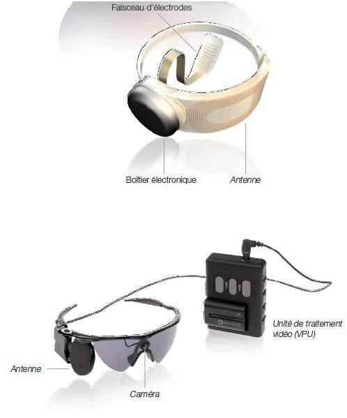 La prothèse Argus II comprend une partie implantée chirurgicalement (en haut) et composée d'un faisceau d'électrodes plaquées sur la rétine, une antenne entourant le globe oculaire et un boîtier électronique. Une paire de lunettes porte une antenne et une caméra reliée à un boîtier contenant le circuit électronique de traitement de la vidéo. © Second Sight
