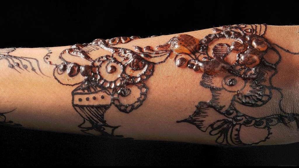 Une allergie au henné