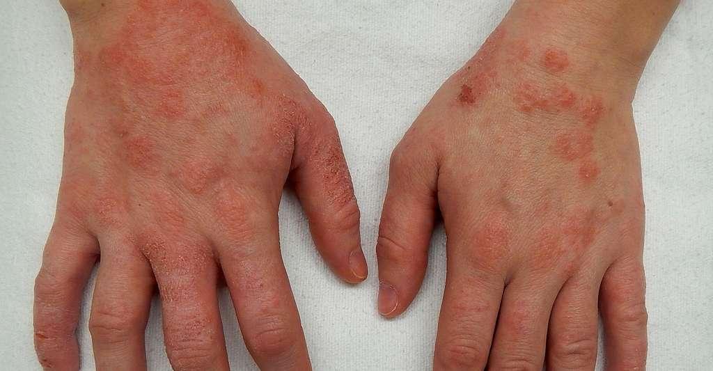 Les patients souffrant d'eczéma atopique peuvent avoir des poussées d'eczéma sur les mains, comme ici sur cette photo. © James Heilman, CC by-sa 4.0