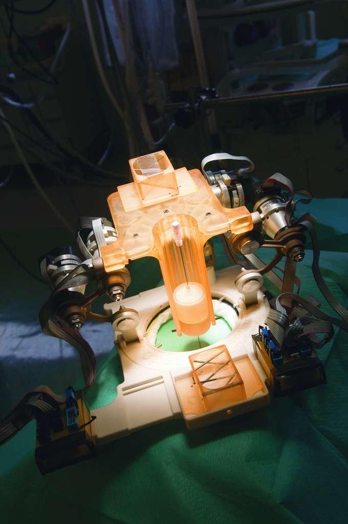 Les robots guidés par scanner, l'avenir de la chirurgie ?
