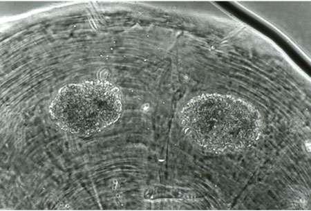 Le réseau trophique du sol est en mouvement incessant. Sur cette image, deux déjections d'acariens à l'intérieur du tube digestif d'un enchytréide (x 200). © DR