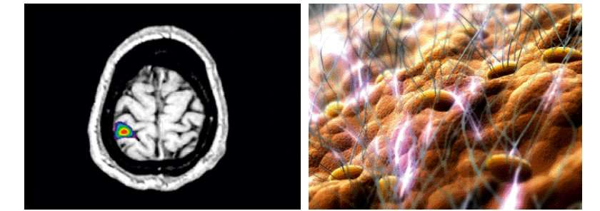 L'action des caresses sur le cerveau par IRM