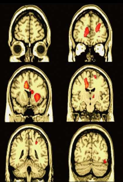 L'excitation sexuelle dans le cerveau