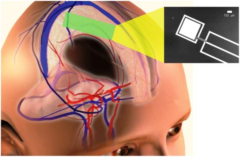Vue d'artiste illustrant le concept d'un implant alimenté par une minipile à combustible baignant dans le liquide cérébrospinal d'où elle tire son énergie à partir du glucose. © Karolinska Institute Stanford University