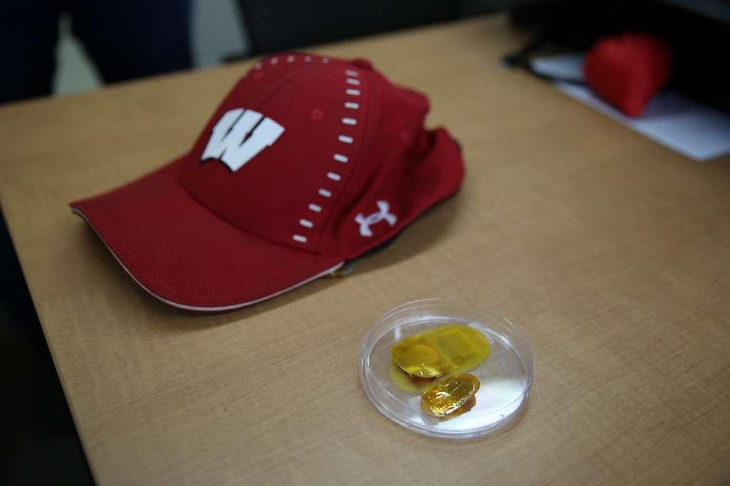 Le petit patch jaune stimule le cuir chevelu pour relancer la pousse des cheveux. © University of Wisconsin-Madison