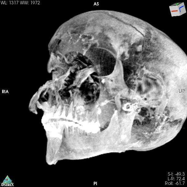 La reconstitution en 3D du crâne de Seqenenrê Tâa. © Sahar Saleem