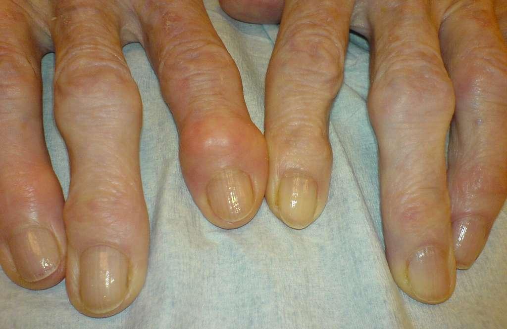 Parmi les manifestations de l'arthrose : la déformation des articulations. © Drahreg01, Wikipedia, CC by-sa 3.0