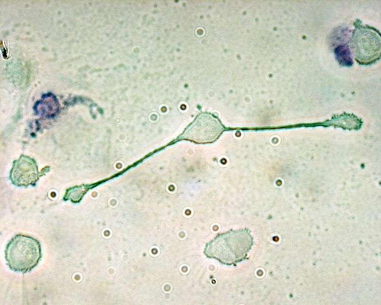 Dans le cas de la myofasciite à macrophages, dont on suspecte les hydroxydes d'aluminium d'être à l'origine, les macrophages, ces cellules du système immunitaire à l'image, s'infiltrent dans le tissu musculaire alors qu'elles n'ont pas à y être. Cela entraîne fatigue, fièvre ou troubles neurologiques. © Obli, Wikipédia, cc by sa 2.0