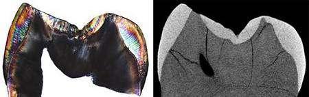 Section réelle de la première couronne de la molaire (à gauche) et section virtuelle produite par scanner micro-CT (à droite). © Max Planck Institute