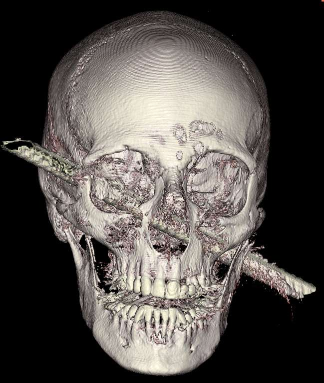 The metal rod 50 centimeters long and one centimeter in diameter crosses the skull right through.  © Samuel Moscovici