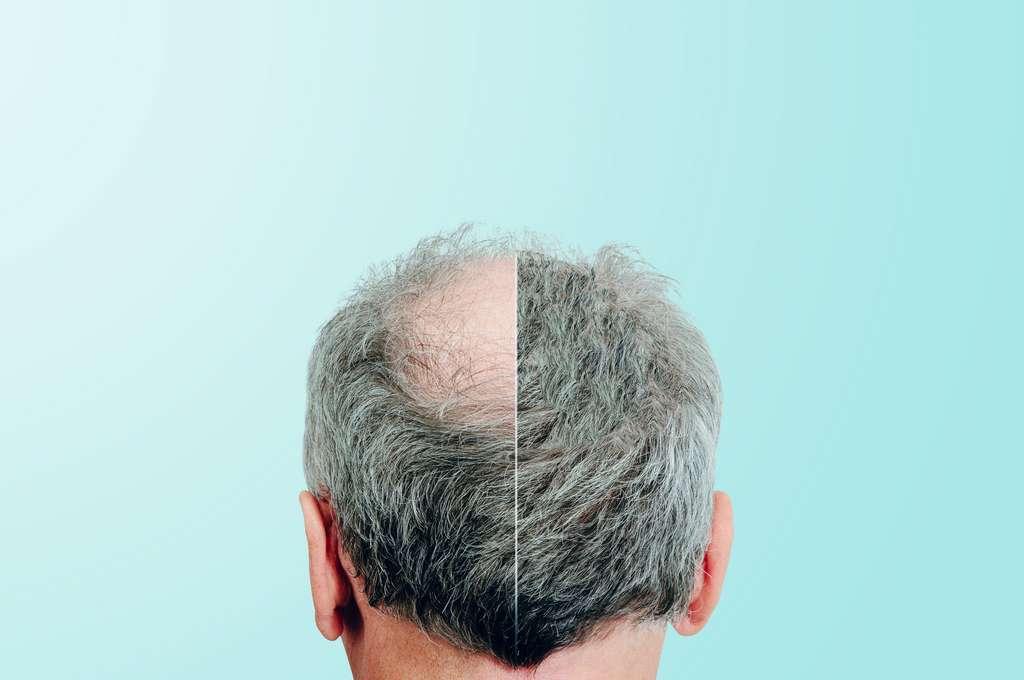 La greffe de cheveux permet de pallier le désagrément de la calvitie. © Sebastian, Adobe Stock