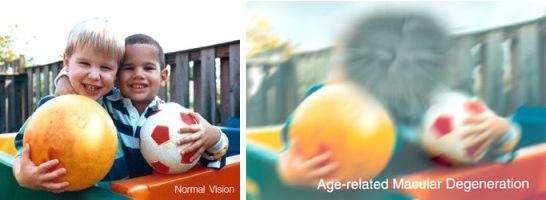 La DMLA affecte profondément l'acuité visuelle. Ces deux images représentent une même scène perçue avec une vision normale (à gauche) ou chez une personne atteinte de DMLA. © NIH