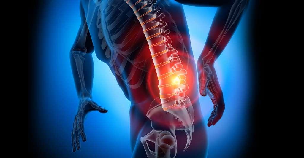 Plusieurs types d'arthrose existent dans la région lombaire. © psdesign1 fotolia