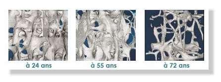 L'exemple ci-dessus montre l'évolution dégénérative de l'os iliaque d'une patiente atteinte d'ostéoporose. Les détails des structures ainsi obtenus permettent de mieux comprendre la maladie et son évolution au cours du temps.