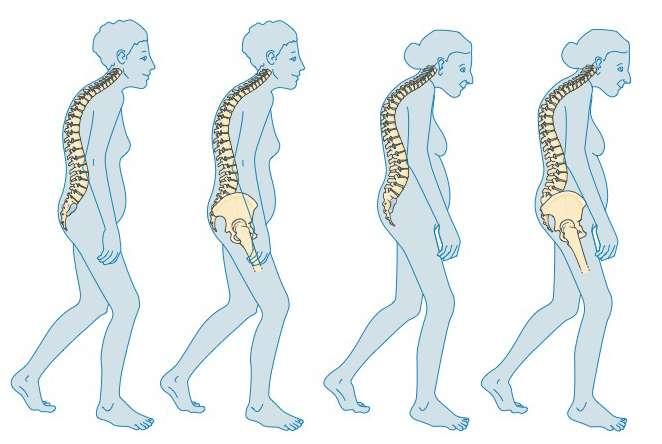 Sur ce schéma, on peut voir l'installation de l'ostéoporose. C'est une maladie osseuse liée au vieillissement, comme l'arthrose. © SMA