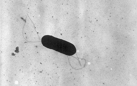 La bactérie Listeria monocytogenes, pourtant pathogène pour l'Homme, pourrait aider l'organisme à ne pas développer d'asthme. © CDC, domaine public