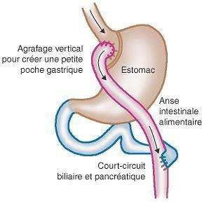 Le by-pass est un court-circuit entre une poche gastrique résiduelle et l'intestin, destiné à limiter l'absorption des nutriments chez les personnes en situation d'obésité morbide. © www.gastroplastie.org